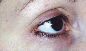 Vzhled očního okolí po 8-týdenním použití REGU-AGE PF